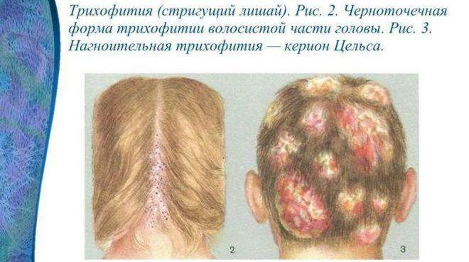 Черноточечная форма трихофитии волосистой части головы