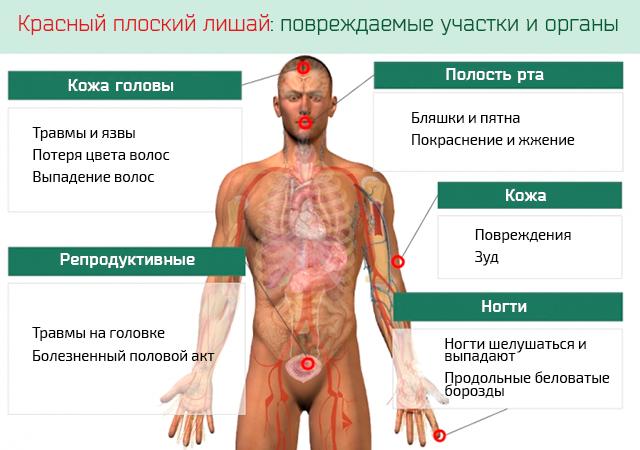 Диагностика красного плоского лишая