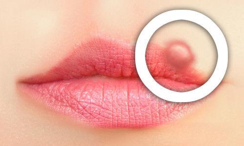 Нетипично поражение лишаём губ