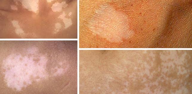 Разновидные пятна на коже