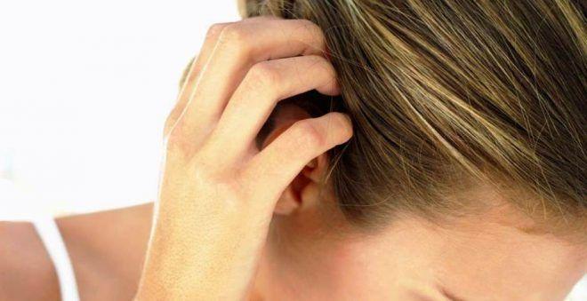 Рентген эпиляция головы