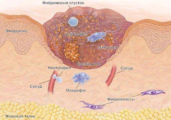 Схема бляшковидного псориаза