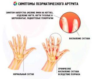 Основные симптомы псориатического артрита