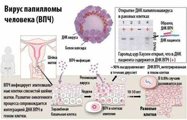 Вирус папилломы человека психосоматика — Советы медиков