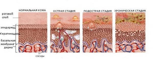 Чем отличается атопический дерматит от атопического thumbnail