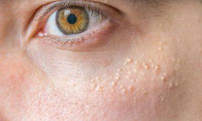 Как избавиться от белых жировиков на лице — Уход за лицом