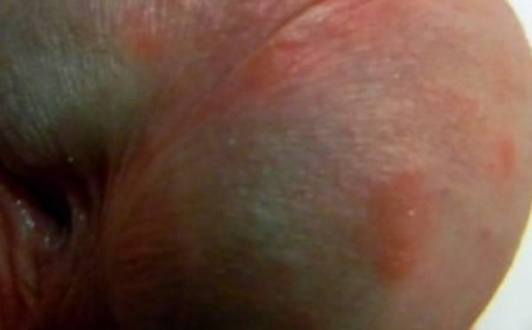 Покраснение на головке полового члена у мужчин — причины и лечение